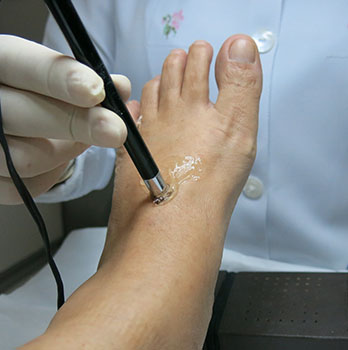 Someone's foot being scanned by podiatrist